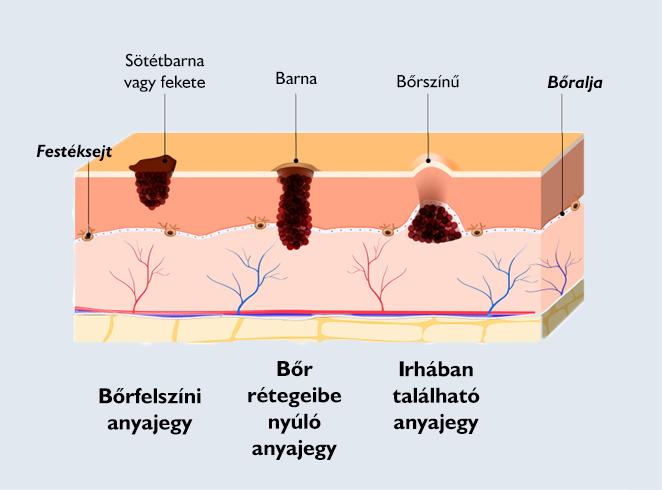 intraductalis papillomatosis mri rák langue hpv