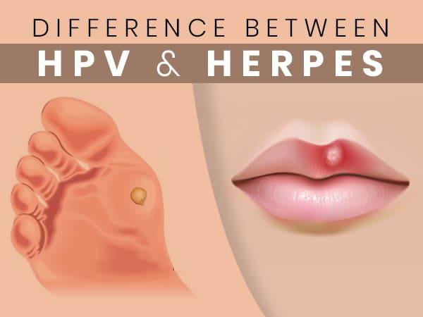 hpv herpesz más helmintférgek a tünetek kezelése