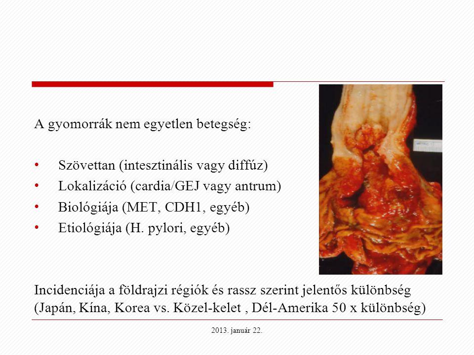 Leheletteszttel diagnosztizálható a gyomorrák