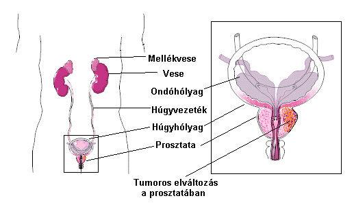 parazita gyógyszerek emberi véleményekben humán papilloma tumor