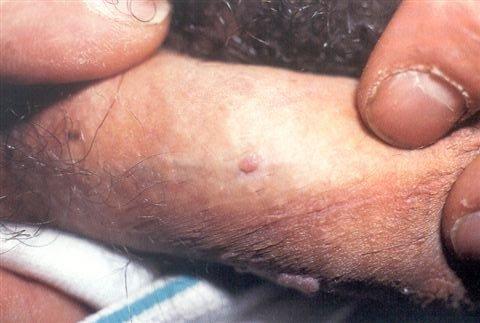 Hpv gyogyulas ferfiaknal - Virus papiloma ninos, Hpv jelei ferfiaknal