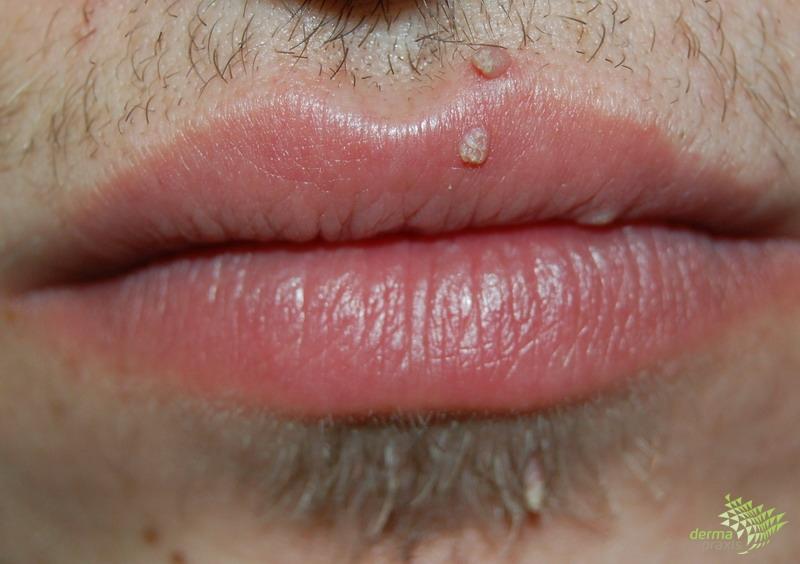 hpv papilloma száj