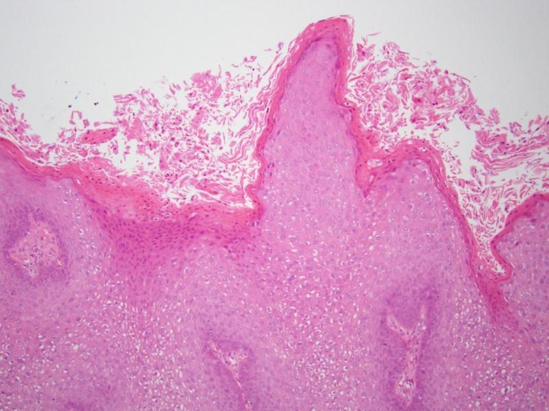 condyloma acuminata és terhesség