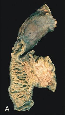 papillomavírus száj torok gyógyító kenőcsök a nemi szemölcsök eltávolítása után