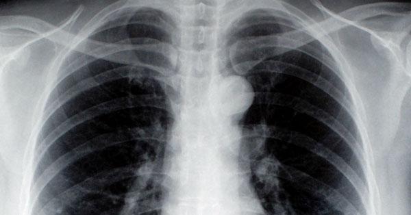 tüdőrák 1. stádium papilloma a szájban hogyan lehet eltávolítani