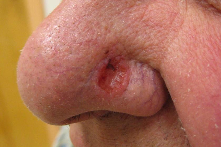 fibroepithelialis papilloma bőr