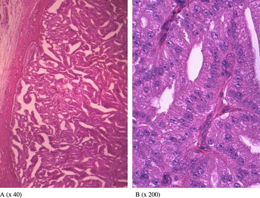 a ductalis papilloma rák vestibularis papillae eltávolítás