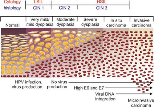 hpv vírus cin 3 papillomavírus vakcina útja
