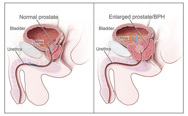 papillomavírus arc a nemi szemölcsök után a szemölcsök kifehéredtek