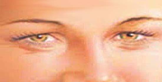 a szem körüli papillómák gyógyszer