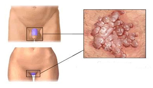 genitális vírus papilloma kezelése