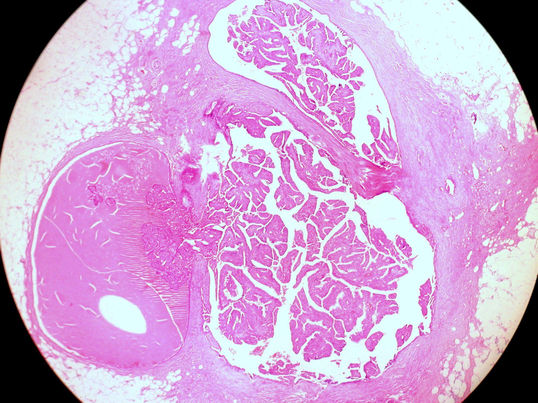 intraductalis papilloma terápia