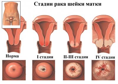 hpv vírus és endometrium rák