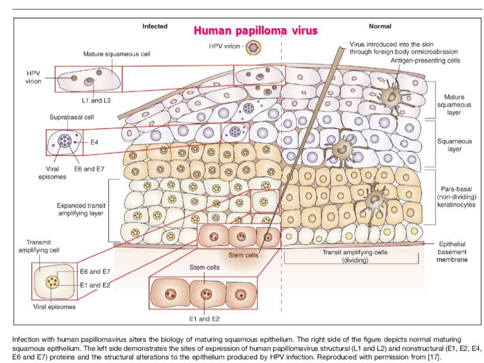 keresztkötéses papillomatosis kezelés hpv herpesz kezelésére