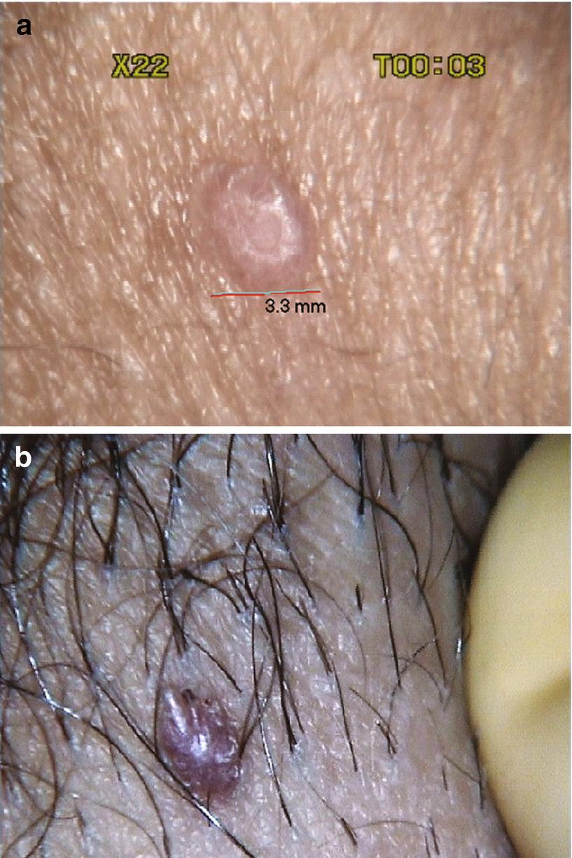 gyógyítható a papillomavírus fertőzés humán papilloma tumor