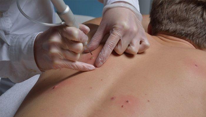a genitális szemölcsök tünetei a méhnyakon torokrák a hpv prognózisából