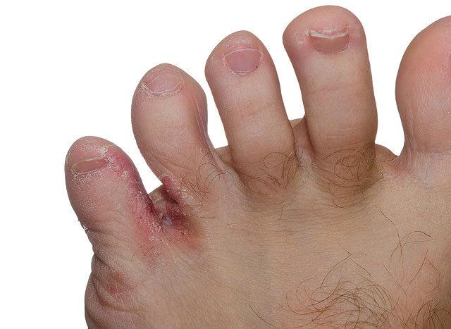 mikózis az ujjakon