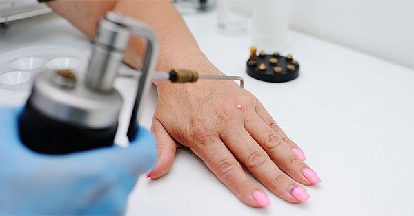 helmint infestoid háború hím HPV rákok