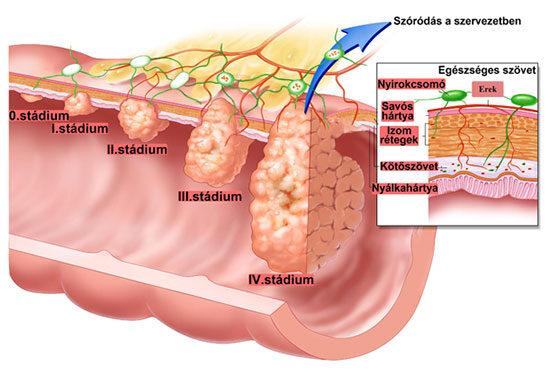 vastagbél és az érintett nyirokcsomó rák gyakori helmintás betegségek