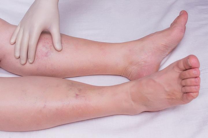 láb baktériumok