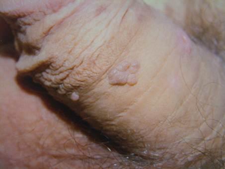 papillomavírus új kezelések
