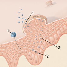 a délnyugati nemi szemölcsök eltávolítása az enterobiosis szempontjából