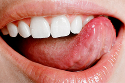 papilloma tünetek a szájban
