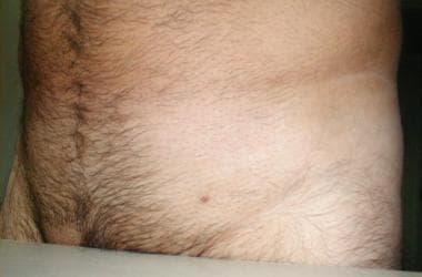 a condyloma cauterizálásának eszköze