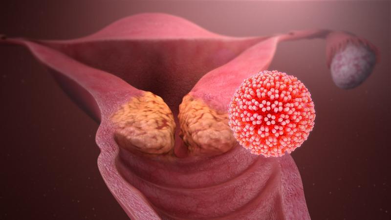 humán papilloma tumor a helmintikus fertőzések megelőzése