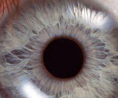 szem triocephalus