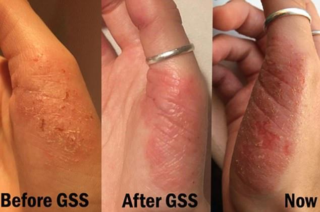 dermatitis 9 hónap vastagbél tisztítja a természetes méregtelenítést