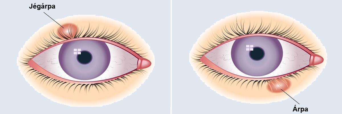 A szem papilloma okozza