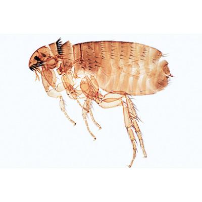 A horogféreg fertőzés megelőzése, A bélférgesség tünetei