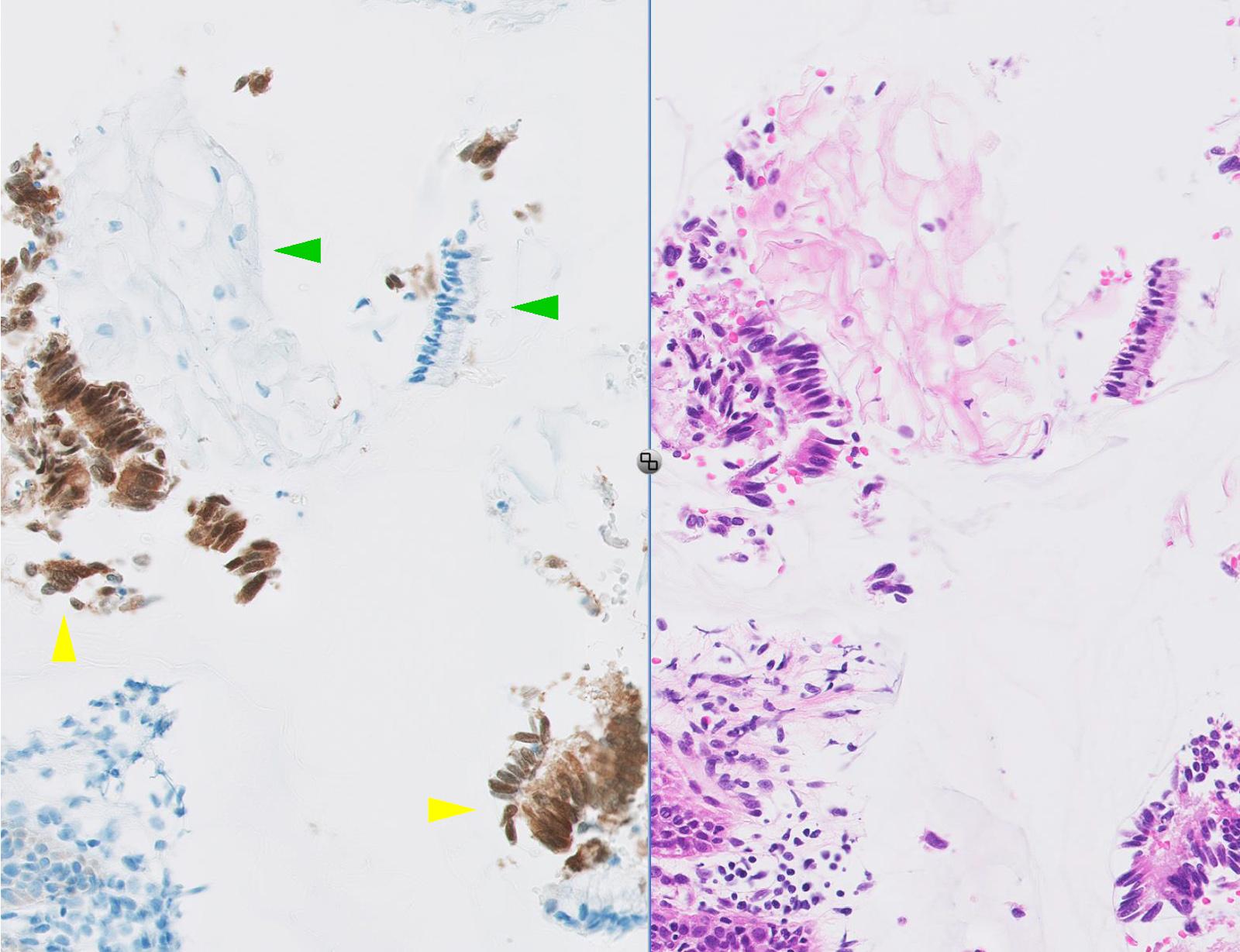 intraductalis papillómák oroszul hogyan lehet eltávolítani a trematode férgeket