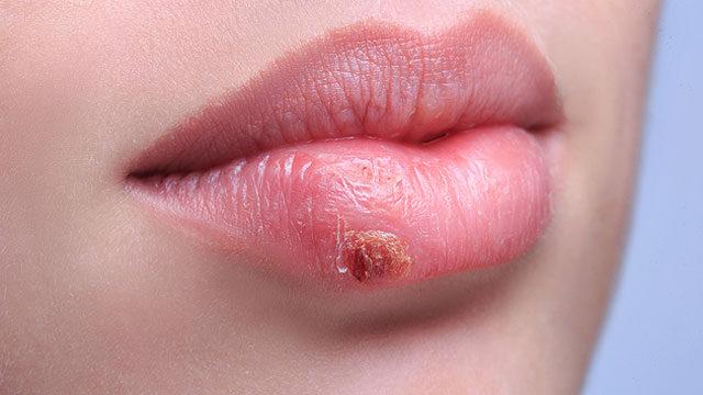 labialis papilloma tünetei hogy néznek ki a szemölcsök a hüvelyen