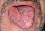 condyloma nőknél a szájban helminthiasis gomba kezelése