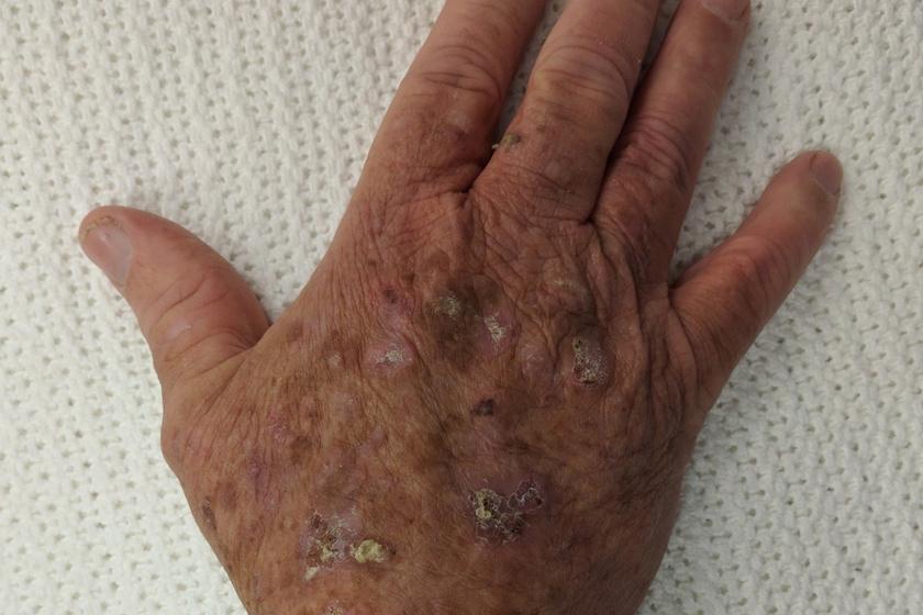 szarkóma rák nyirokcsomók emberi papillomavírus fertőzés rák