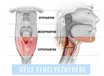 légzési papillomatosis elváltozások hasi rák hátfájás