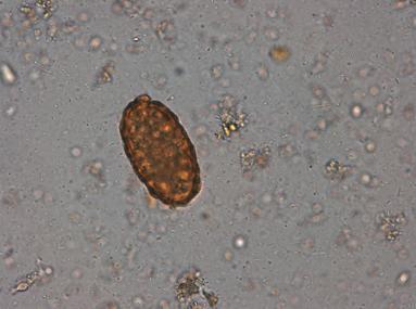 lamblia parazita