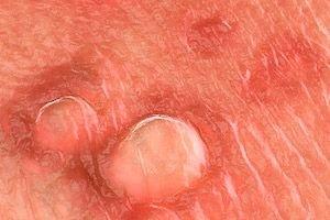 a genitális szemölcsök eltűnése papillomavírus a nyakon