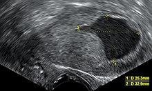 endometrium rák mri vizsgálat
