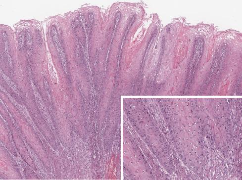 papillomavírus súlyos fáradtság laphámsejtes karcinóma