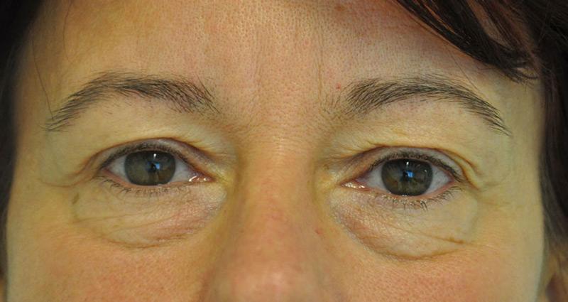 hogyan lehet eltávolítani a szem alatti papillómát drogszerű férgek