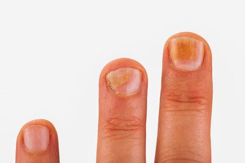 tünetei és a körömférgek kezelése