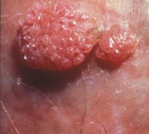 a papilloma vírus elleni vakcina kockázata hpv vírus német