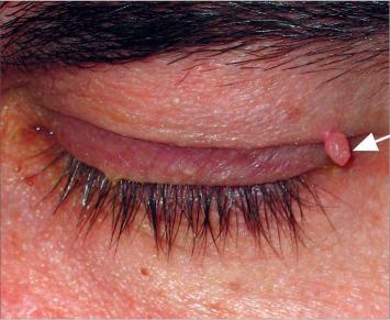 papilloma keratom kezelés a nemi szemölcsöket kenőccsel gyógyítja