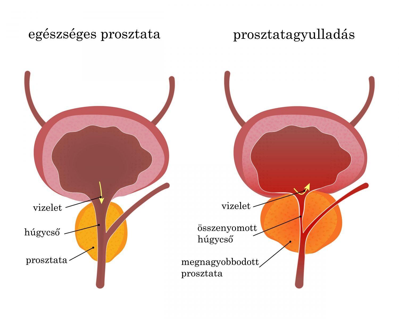 a petesejtek tünetei és kezelése vakbélrák