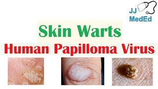 papillomavírus és condyloma férgek kezelése gyermekeknél mi az