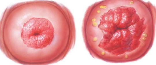 condyloma és erózió