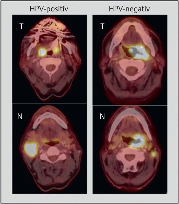 papillomavírus hpv 54 sok genitális szemölcs